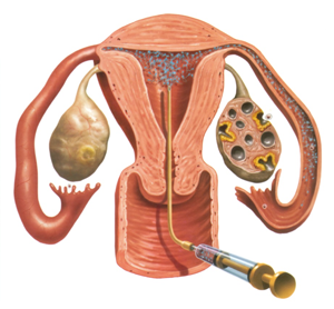 Ovulation Induction Treatment