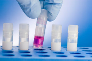 infertility tests in Delhi India
