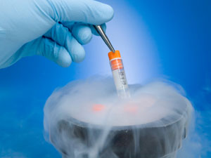 Freezing Eggs procedures