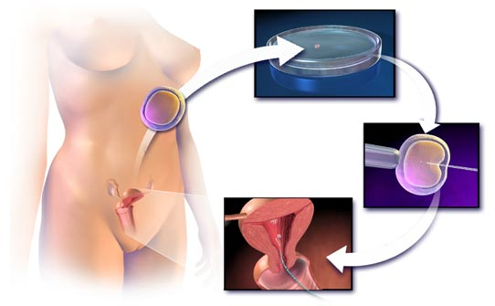In-Vitro Fertilization Treatment