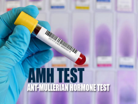 AMH Test – A way to Measure Ovarian Reserve of a Woman